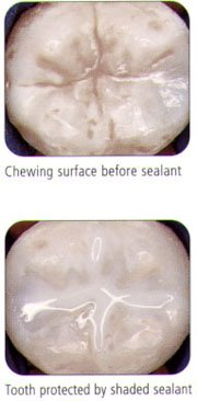 Sealants for roof