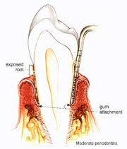 Periodontitis gravis