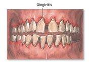 How to prevent gingivitis?