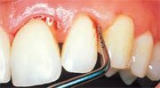 Cure periodontal disease