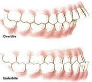 Normal occlusion of teeth ppt