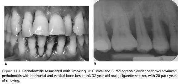 Smoking periodontal disease and the role of the dental profession