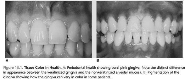 Healthy gingiva appearance