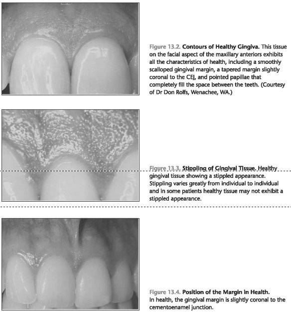 Clinical Features Of Healthy Gingiva Foundations Of Periodontics
