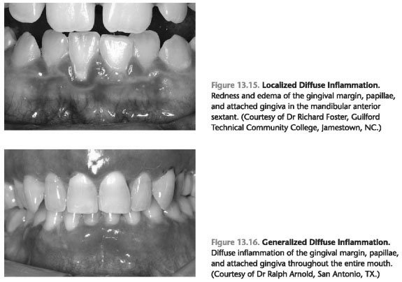 Gingival inflammation index