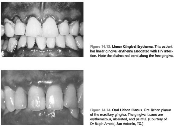 Herpetic gingivostomatitis in toddlers