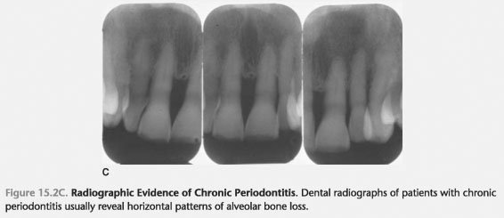 Characteristics periodontitis