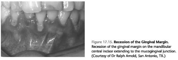 Mucogingival deformities and conditions around teeth