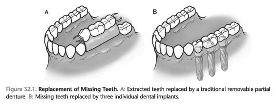 Anatomy of the Dental Implant - Foundations of Periodontics ...