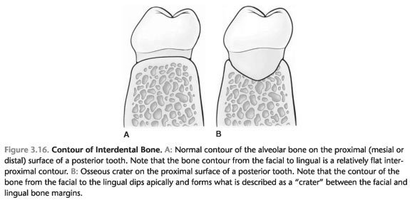 Bone defects at birth